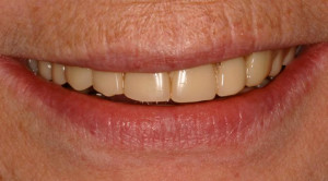 photo_custom-denture-1