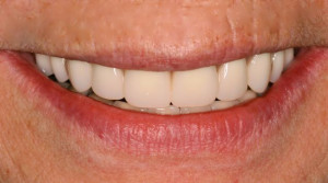 photo_custom-denture-2