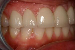 photo_implant-2